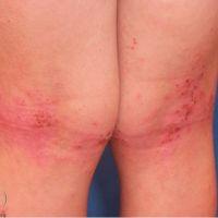 Диета от псориаза джон пегано лечение псориаза